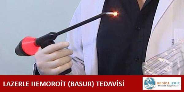 LAZERLE HEMOROİT (BASUR) TEDAVİSİ